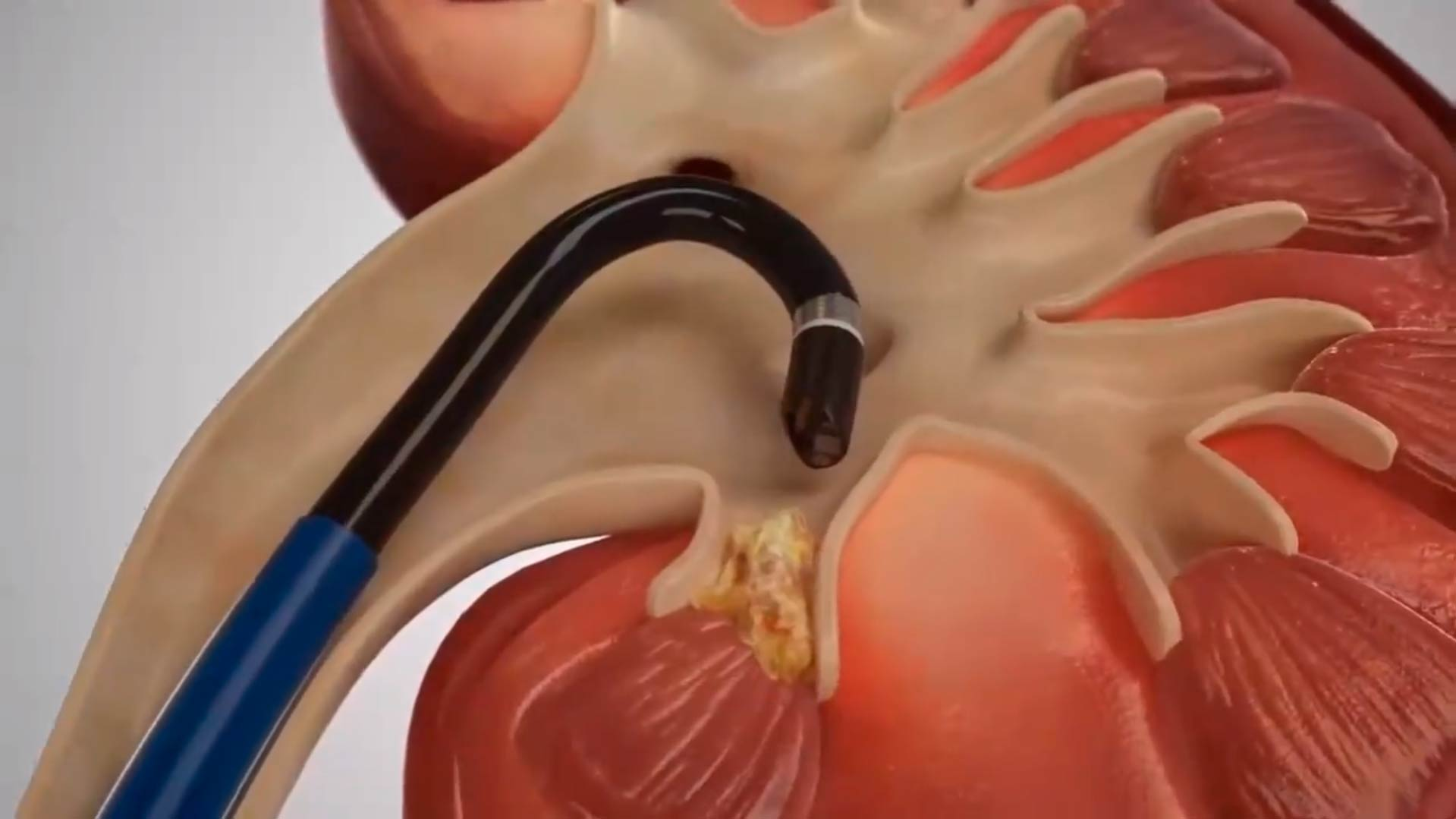 nefrolitotricia-flexible-laser1