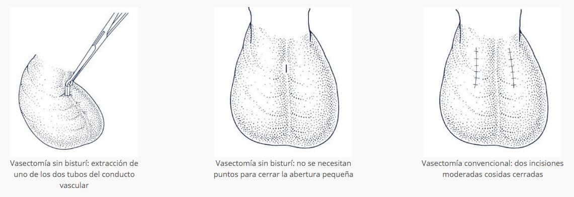 vasectomia en tijuana
