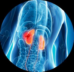 Tumores urológicos