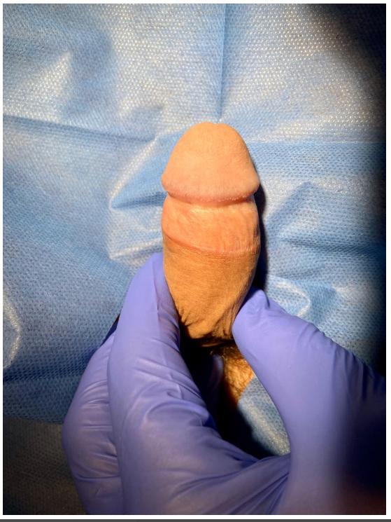 Circuncisión - Dr. Rigoberto Rodríguez 3